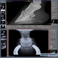 CR - DR para raio x