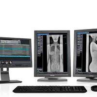 Digitalizador de imagens radiológicas