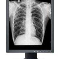 Monitor radiologia