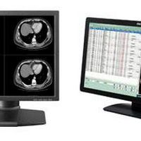 Monitor radiologia digital