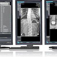 Software de Imagem PACS DICOM